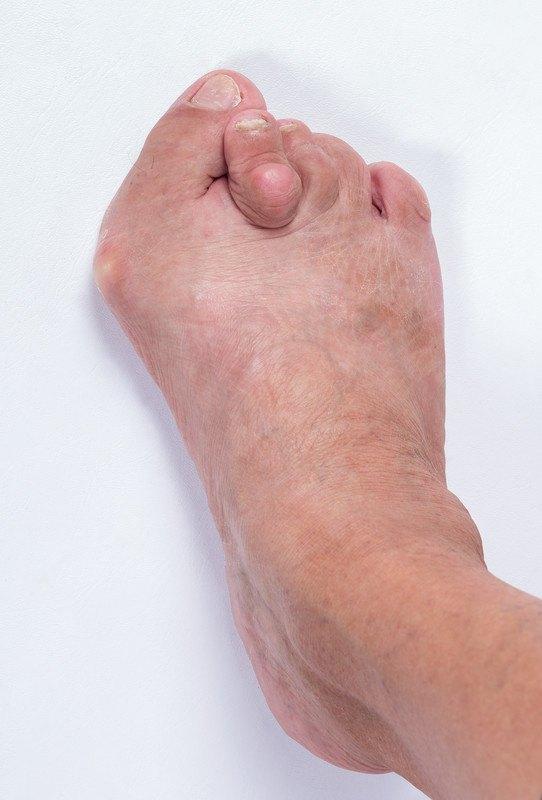 Deformidades dos dedos menores