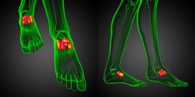 Osteocondroses e Osteocondrites do pé